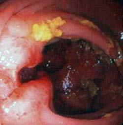 Anastomosi Ileo Colica Con Recidiva Neoplastica