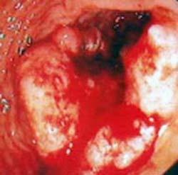 Carcinoma Retto 1