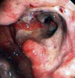 Carcinoma Sigma