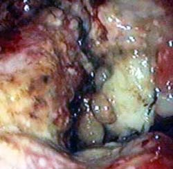 Carcinoma Stomaco