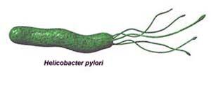 Helicobacter Pylori1